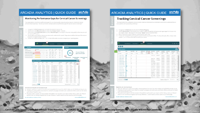 ervical Cancer Screenings Quick Guides